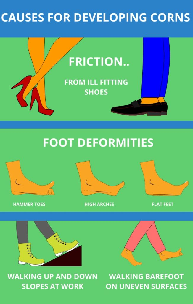 What Causes Corns On Feet Infographic