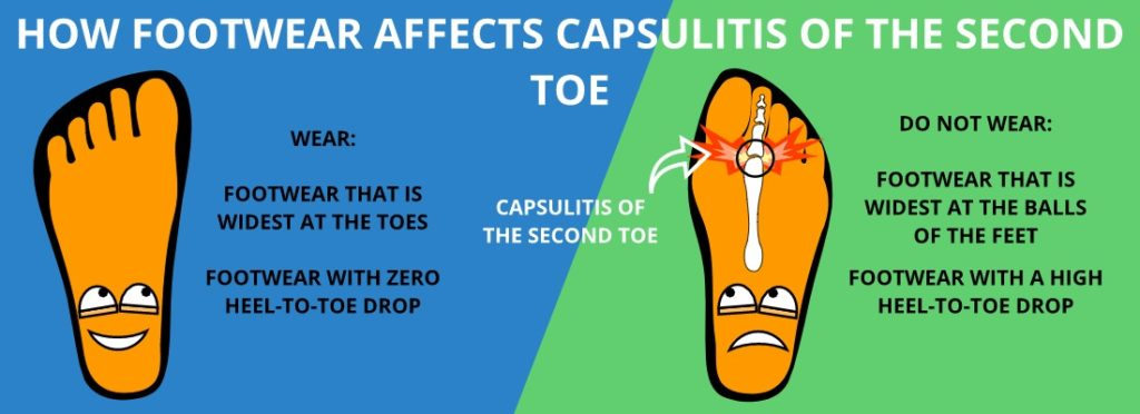 BEST TYPES OF SHOES TO WEAR FOR CAPSULITIS OF THE SECOND TOE