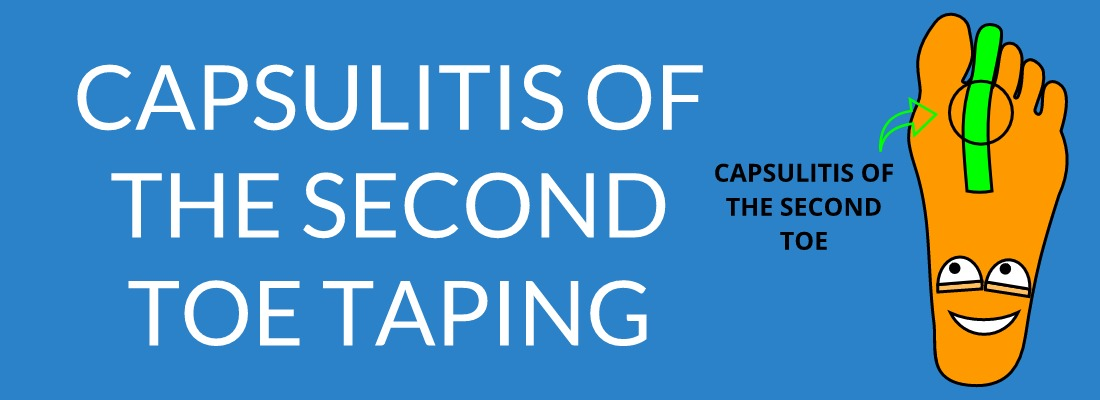 Capsulitis Of The Second Toe Taping
