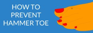 How to prevent hammer toe