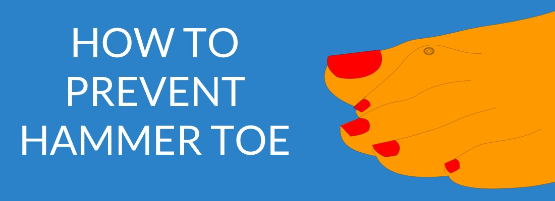 How To Prevent Hammer Toes