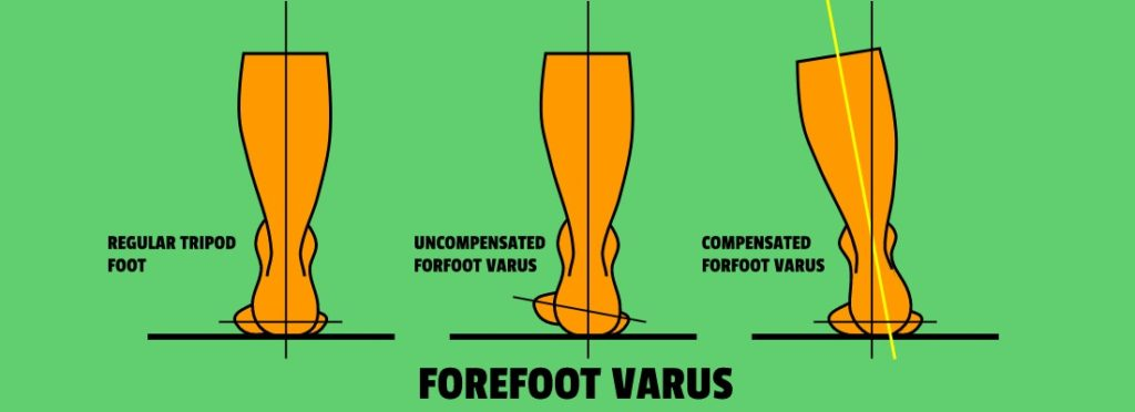 Foot Tripod Vs, Uncompensated Forefoot Varus Vs. Compensated Forefoot Varus