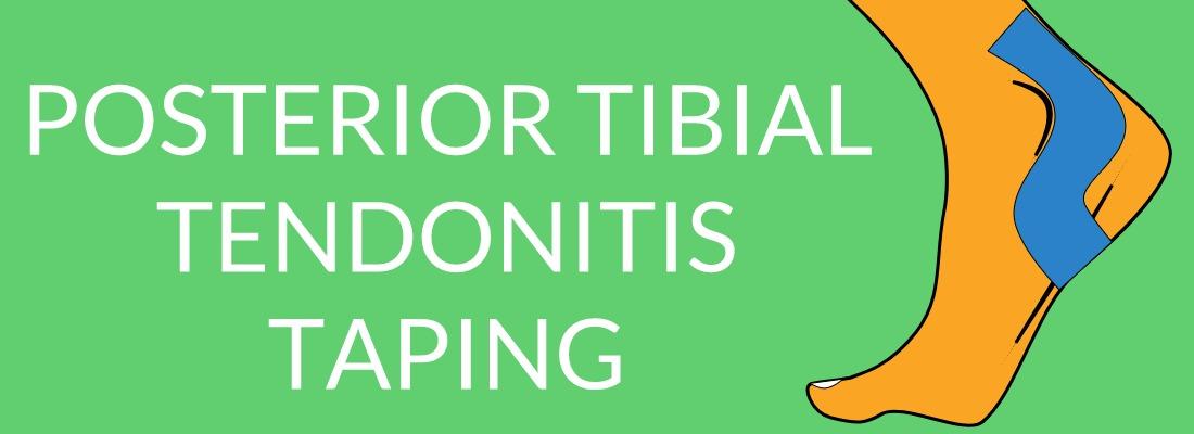 POSTERIOR TIBIAL TENDONITIS TAPING