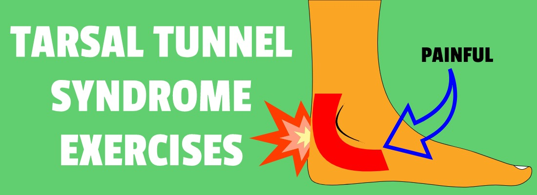 TARSAL TUNNEL SYNDROME EXERCISES
